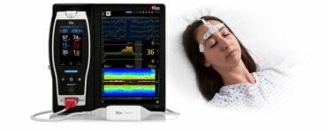 masimo-sedline-brain-monitoring