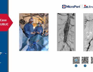microport-endovastec