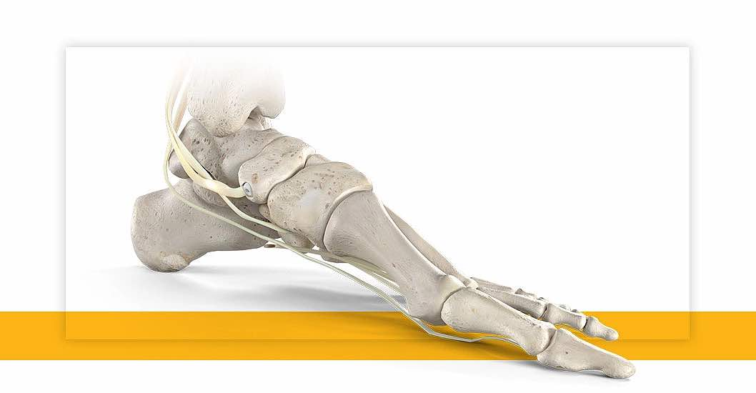 tendon-fixation-device-system